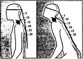 Метод александера техника