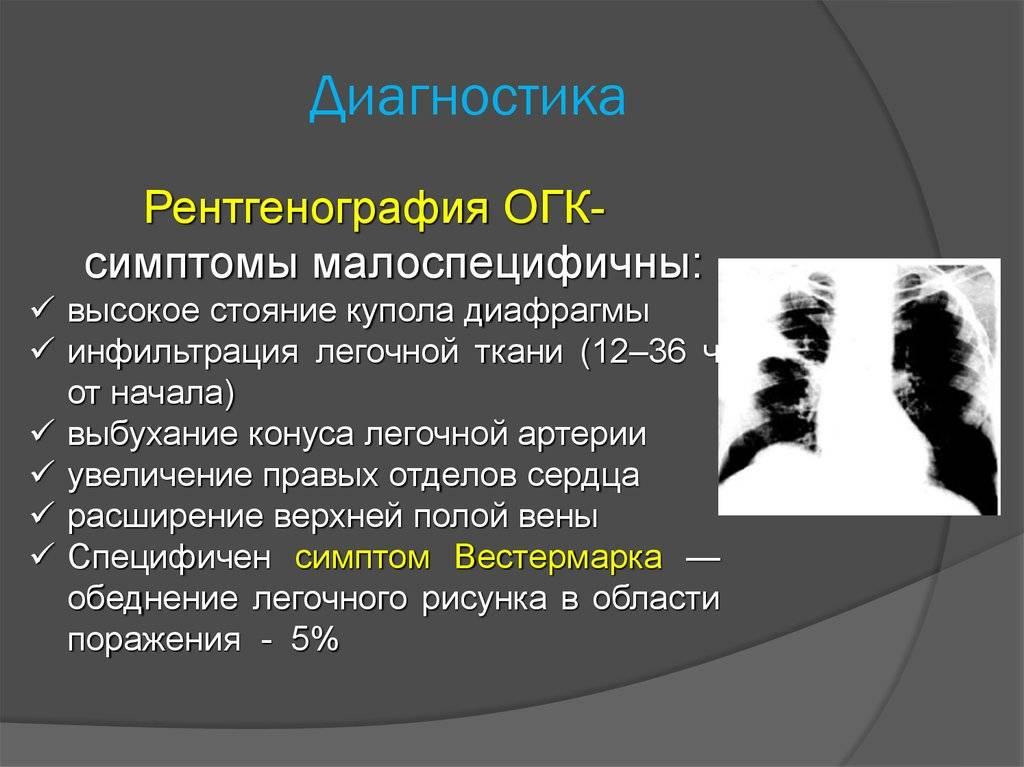 Систематическая десенсибилизация — википедия с видео // wiki 2