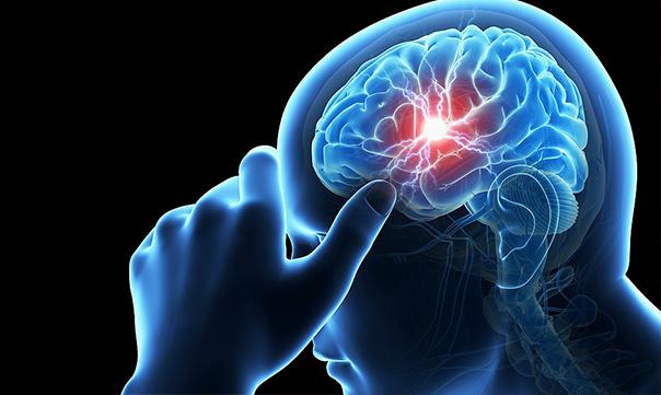 Инсульт — психосоматика заболевания