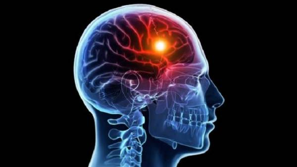Инсульт: признаки, виды, лечение, реабилитация
