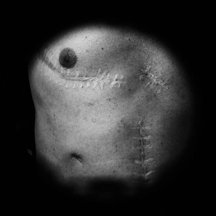 Клиническая смерть и ее последствия для организма