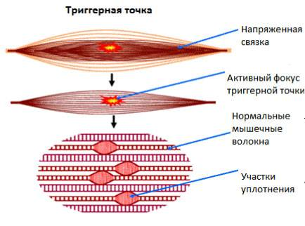 Психосоматика мышечных зажимов в разных частях тела