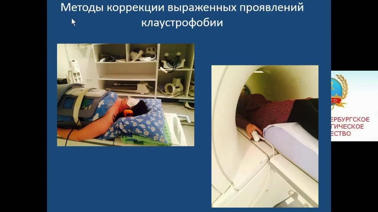 Лечение клаустрофобии