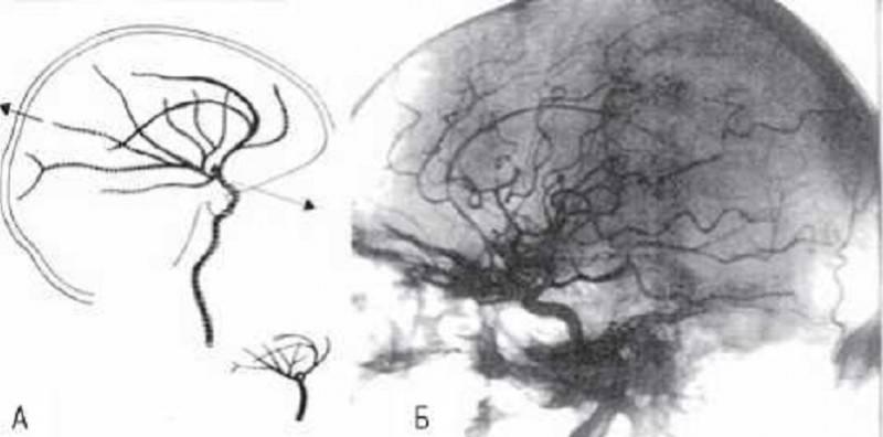 Ангиография сосудов головного мозга и шеи МР и КТ